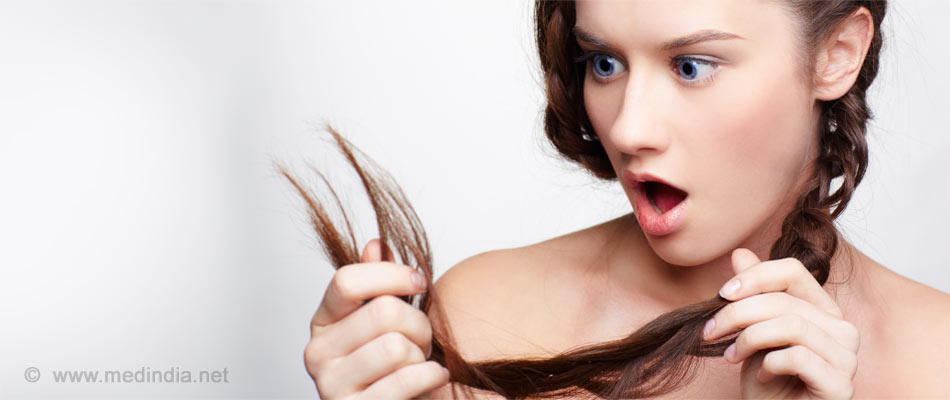 Beware! Hair Styling May Lead to Baldness