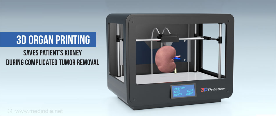 3 d organ printing essay 3-d printing is the process of making a physical three-dimensional object from a digital model by using thin layers of material (3-d printing, oxford dictionary) one would deem the initial conceptualization of 3-d printing to come straight out of a science fiction film.