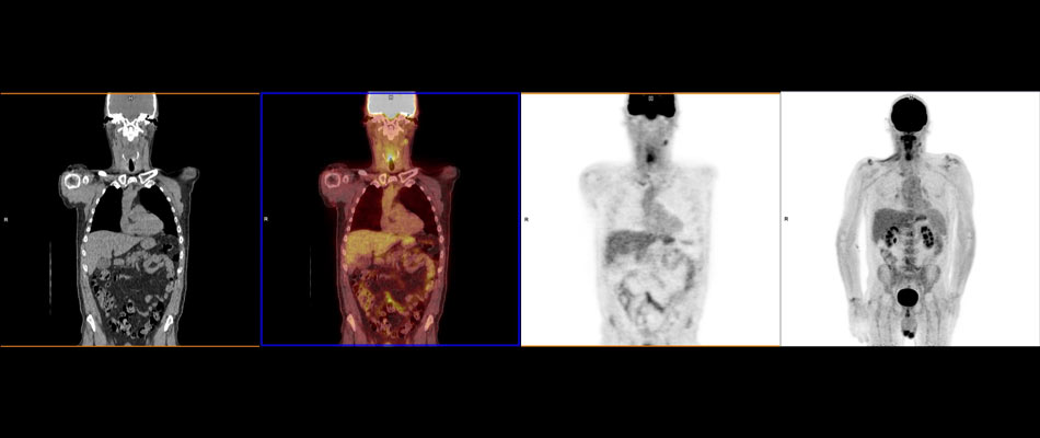 Advanced Imaging Identifies Persistent Cancer Cells