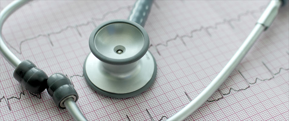 Atrial Fibrillation Patients Treated With Warfarin at Increased Risk of Dementia