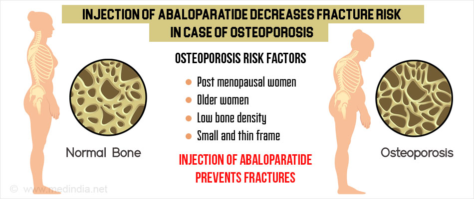 Abaloparatide Injections Found to Reduce Risk of Fractures Among Osteoporotic Women