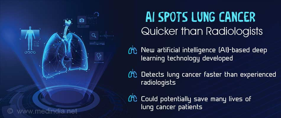 Artificial Intelligence Detects Lung Cancer Before Radiologists