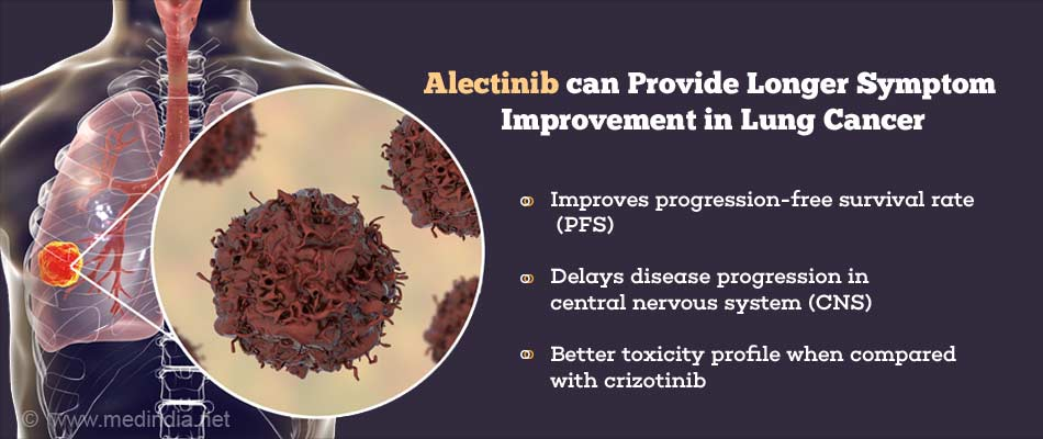 Alectinib May Be Drug Of Choice to Treat Non-Small-Cell Lung Cancer