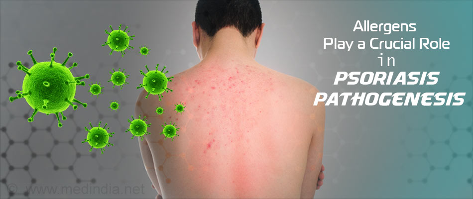 Allergic Reactions Among Psoriatic Patients