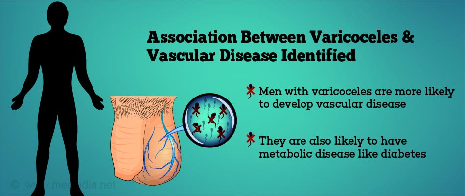 Association Between Vascular Disease and Varicoceles Found