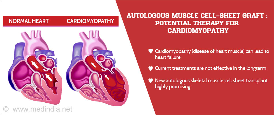 Novel Therapy For Cardiomyopathy : Patient's Own Thigh ...