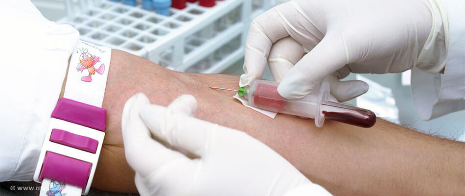 Simple Blood Test May Predict Risk of Stroke Recurrence