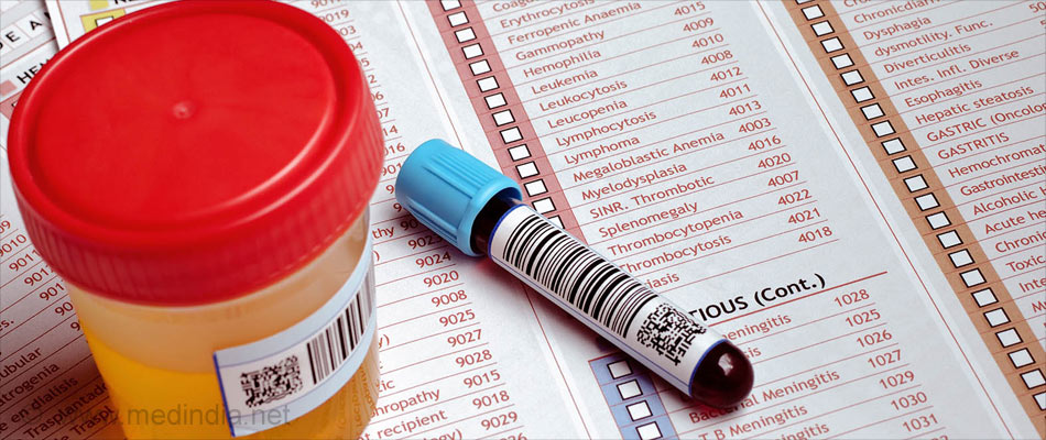 Highly Selective Urine Test can Detect Any Virus Accurately!