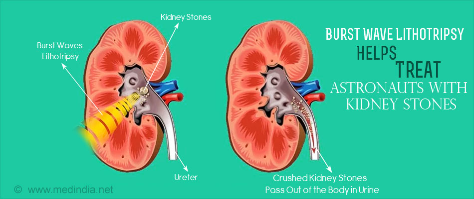 Kidney Stones Zapping Technology by NASA to Help Treat Astronauts With Stones