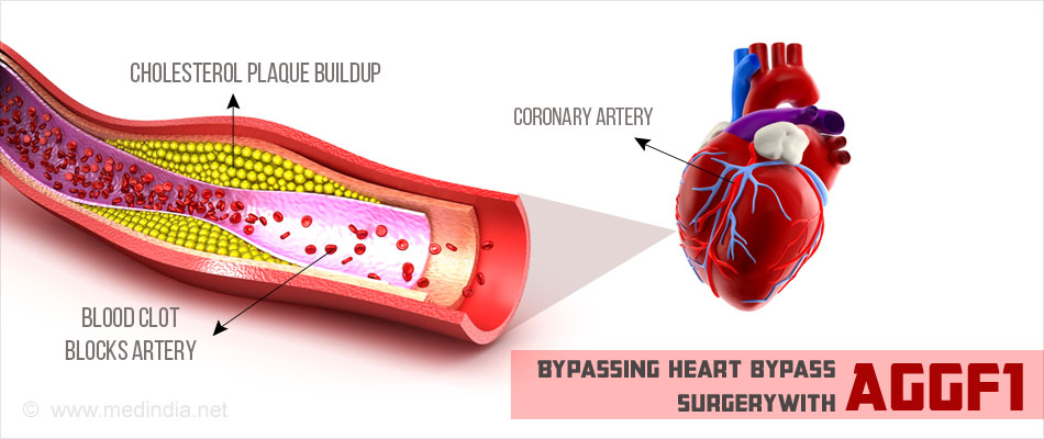 Heart Bypass Without Surgery