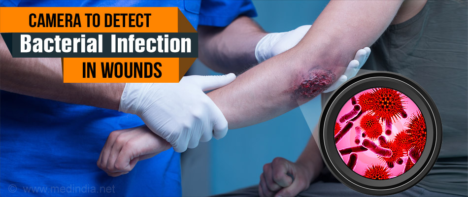 Wound Healing and Diagnosis Could Be Improved With This Germ-Detecting Camera