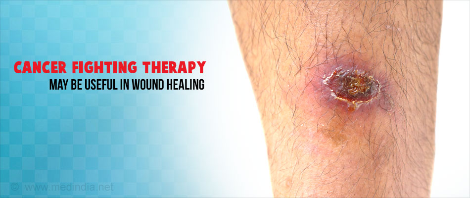 Skin Cancer Treatment may Benefit Wound Healing