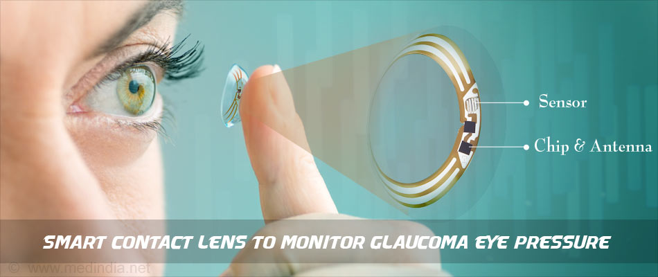 Contact Lens may Predict Glaucoma Progression