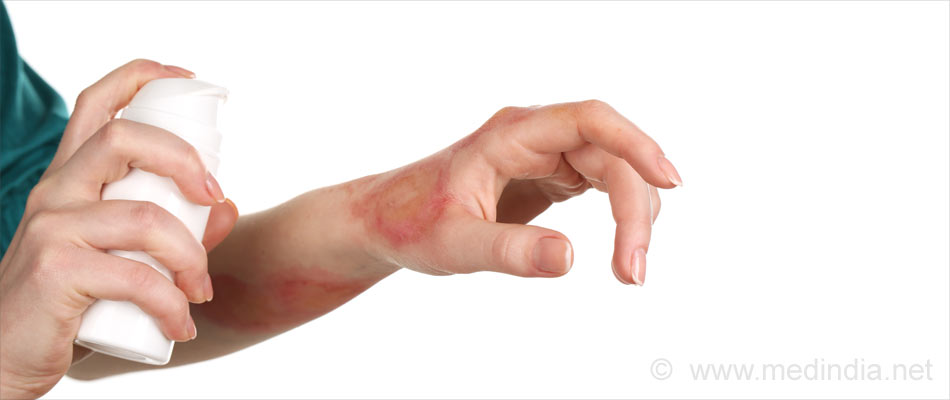 Psoriasis Patients Have Low Adherence to Biologic Drug Therapy