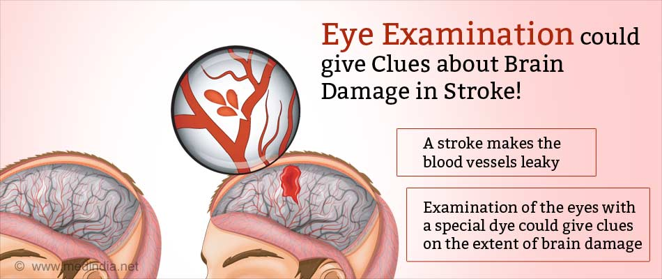 Eye Examination Could Obviate The Need For MRI In Stroke Diagnosis