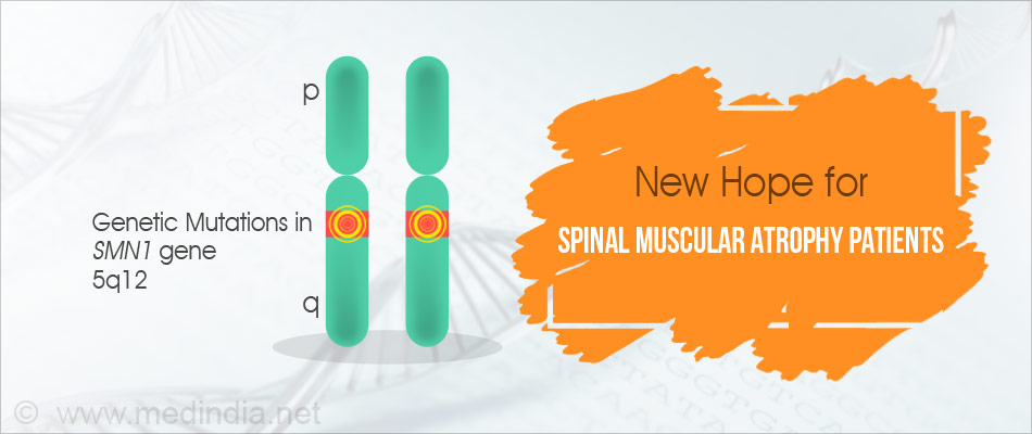 First Investigational Treatment For Spinal Muscular Atrophy Yields Positive Results In Clinical Trials