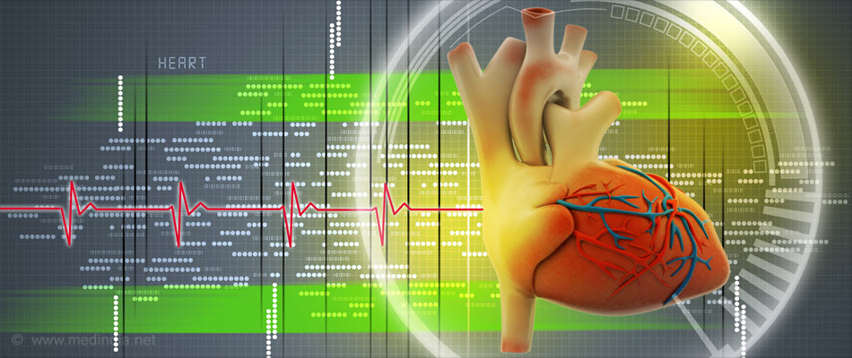 One in Four Patients Develop Heart Failure Within 4 Years of First Heart Attack