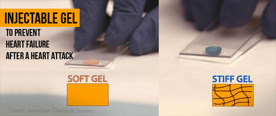 New Injectable Gel May Prevent Heart Failure After a Heart Attack