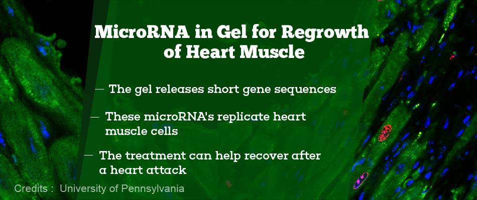 Injectable Gel With MicroRNA Regenerates Heart Muscles
