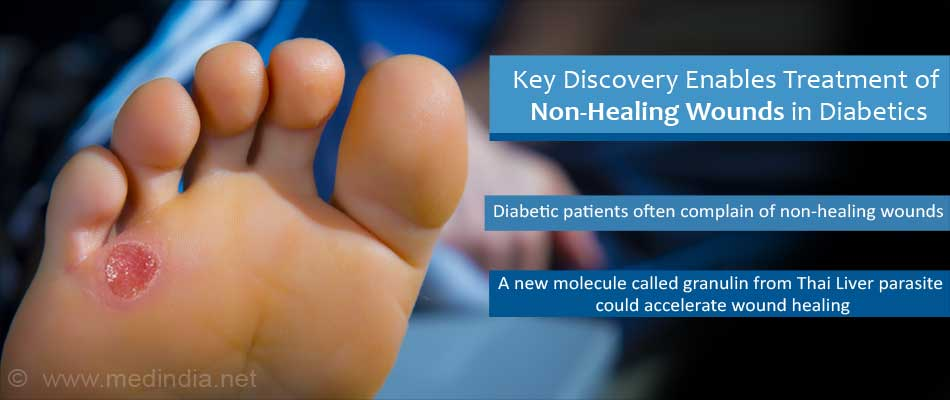 Diabetics Can Now Heal Their Wounds With Designer Worm Spit
