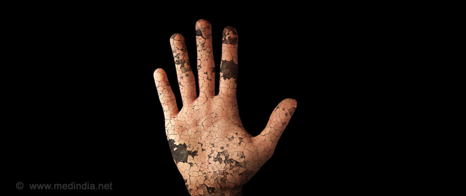 WHO Releases New Strategy Aiming for a Leprosy-Free World by 2020