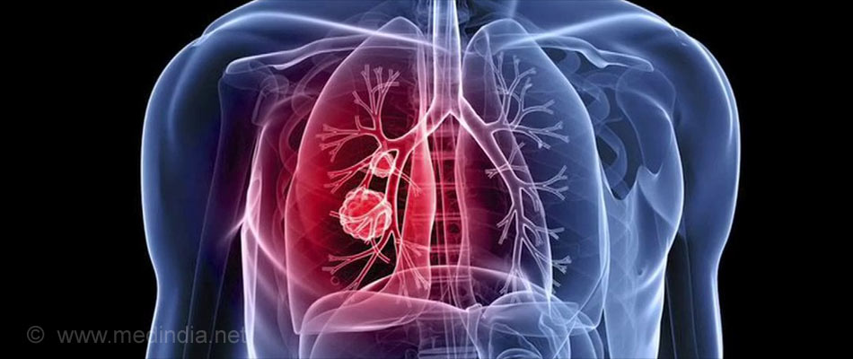 Lung Cancer: The Most Common Cause of Cancer Deaths in UK