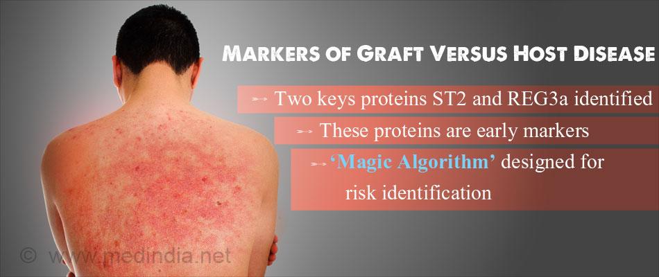 'Magic Algorithm' Designed to Identify Graft Versus Host Disease