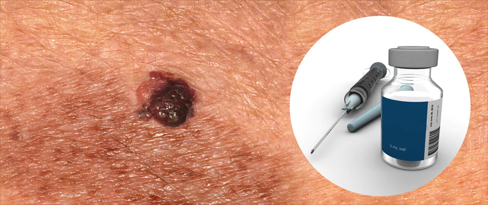 New Drug Delivery Technique Developed to Treat Melanoma