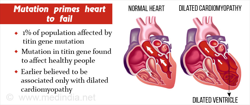Gene Mutation Could Prime the Heart To Fail