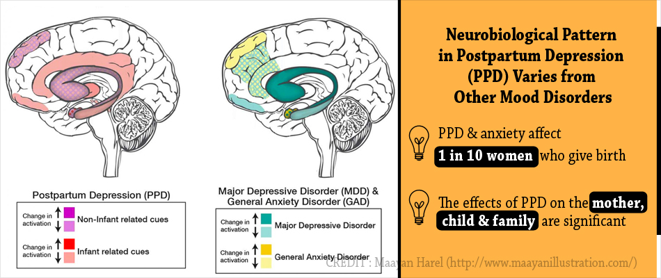 Postpartum Depression And Anxiety Differ From Other Mood Disorders