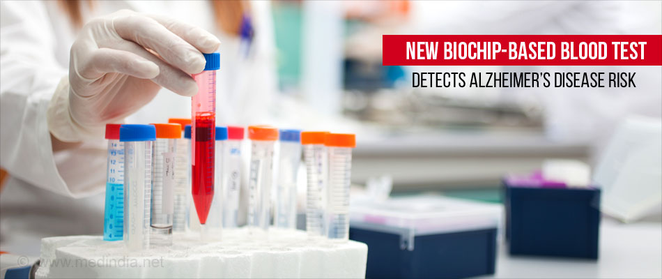 New Biochip Based Test In Par With DNA Test In Detecting Risk For Alzheimer's Disease