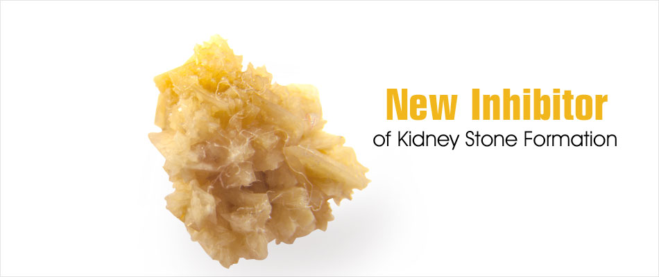 New Effective Inhibitor of Kidney Stone Formation Identified