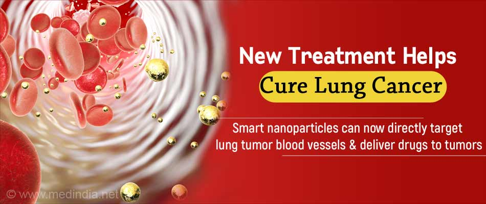 Lethal Delivery of Drugs Using Smart Nanoparticles Brings New Hope to Lung Cancer Patients