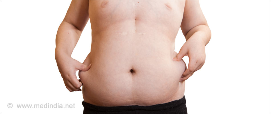Women Opt for Silicon Balloon Implants to Lose Weight