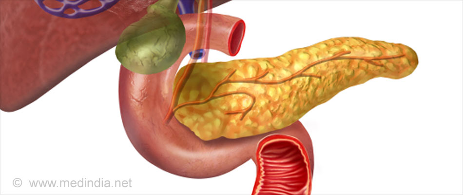 Vitamin A Combined Chemotherapy May Help Improve Pancreatic Cancer