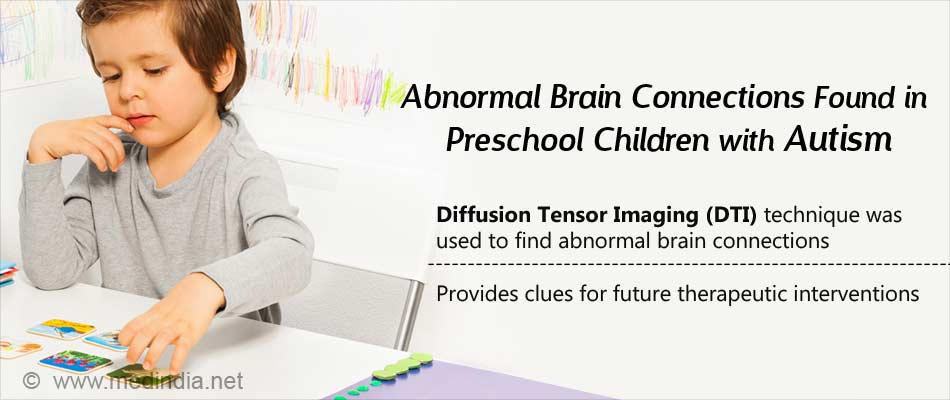Preschool Children With Autism Have Abnormal Brain Connections, Reveals MRI Study