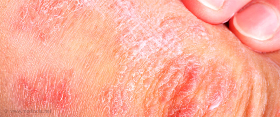 Diabetes and Obesity may Share a Link To Chronic Skin Condition