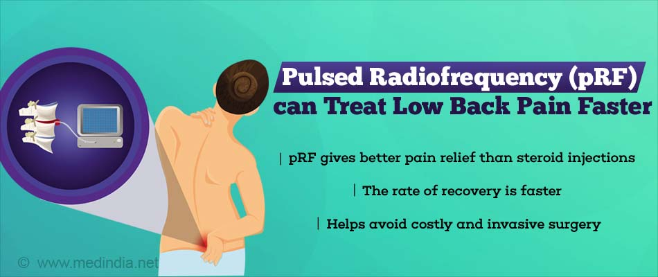 Pulsed Radiofrequency Safe and Effective for Pain Relief in Low Back Pain