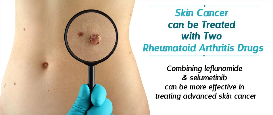 Rheumatoid Arthritis Drugs Can Help Treat Advanced Skin Cancer