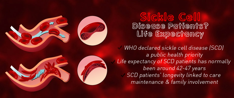 Rare Patients With Sickle Cell Disease Live Nearly Twice