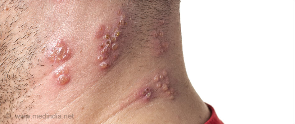 Altering Skin Microbiome May Cure Atopic Dermatitis