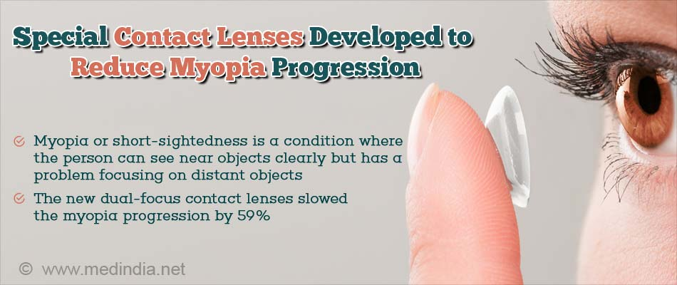 Special Contact Lenses to Reduce Myopia Progression