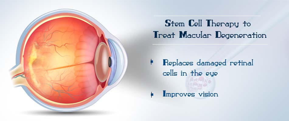 Stem Cell Therapy to Treat Dry Macular Degeneration
