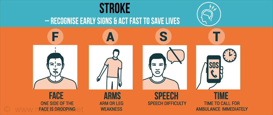 Stroke Recognise and Act FAST
