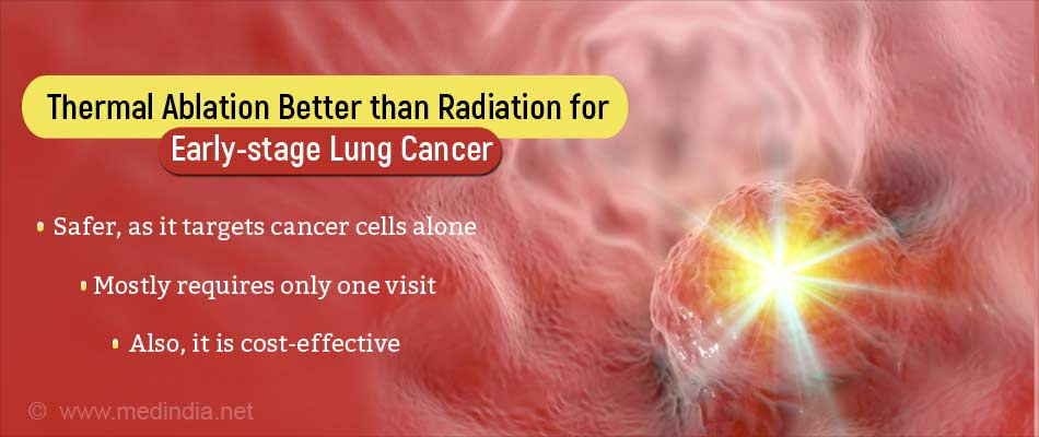 Thermal Ablation as a First Step in Treating Early-stage Lung Cancer