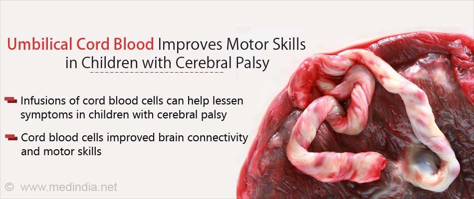 Cerebral Palsy in Children: Cord Blood Improves Motor Skills and Brain Connectivity
