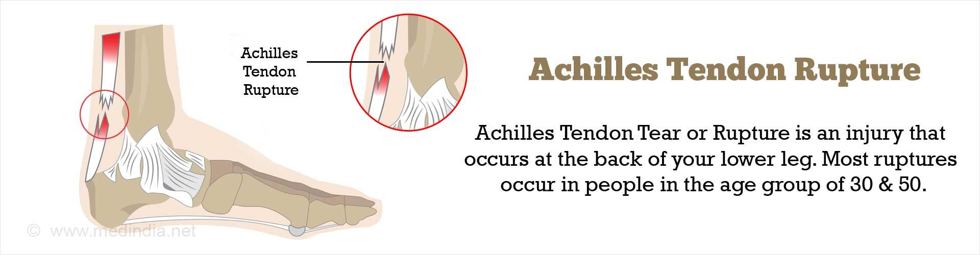 Achilles Tendon Rupture or Tear