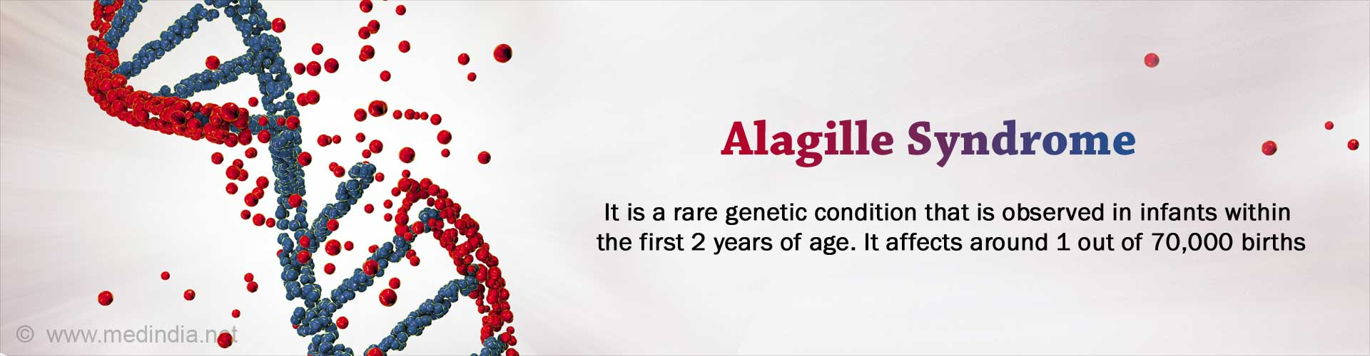 Alagille Syndrome (AGS) - Causes, Symptoms, Diagnosis, Treatment, Prevention
