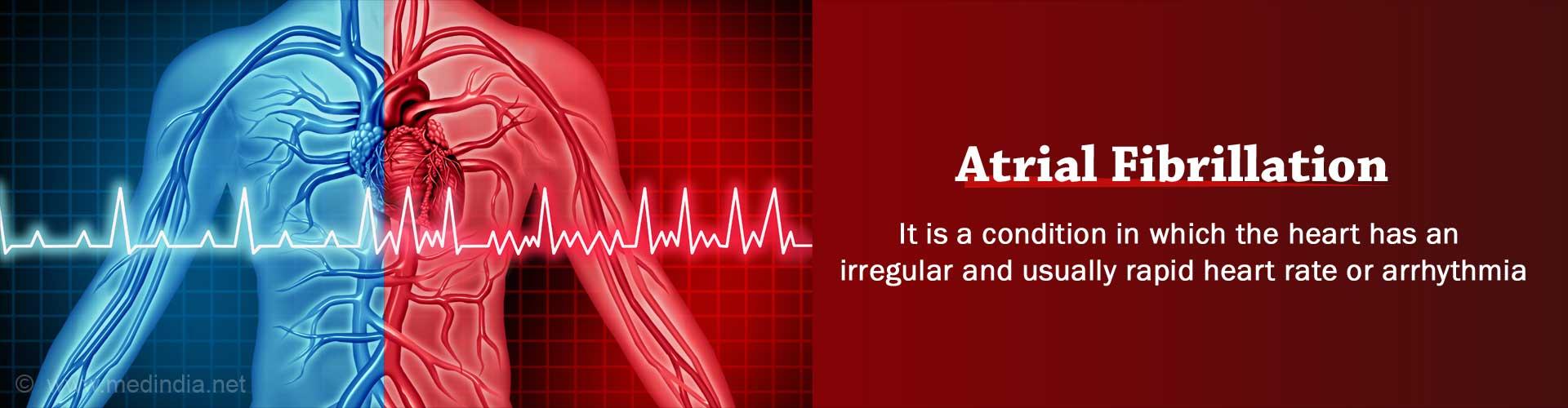 Atrial Fibrillation - Causes, Symptoms, Diagnosis, Treatment, Complication, Risks
