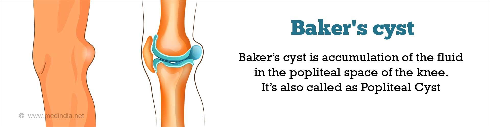Baker''s Cyst